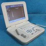 デジタル最も安い診断の医学の超音波装置Mslpu26