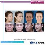 Portable Themagic RF fractionnaire de la peau Face de serrage de la machine de levage