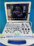 Ultrason cardiaque de Portable de scanner de produit médical d'écho d'onde entretenue