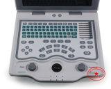 Strumentazione dell'ospedale, macchina ultrasonica diagnostica medica, scanner ultrasonico portatile, ultrasonico