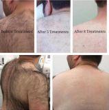 Macchina approvata dalla FDA professionale di vendita calda superiore 808nm di rimozione dei capelli del laser del diodo