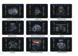 Minihandbeweglicher menschlicher voller Digtal Ultrasond Scanner