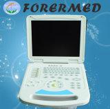 Диагностика оборудования портативный ультразвуковой сканер с маркировкой CE ISO
