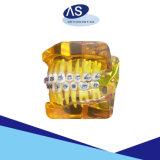 De tand Medische het Afbinden van de Apparatuur Orthodontische ZelfSteunen van het Metaal van het Profiel van het Metaal Braces/MIM Lage