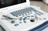 Scanner-Klinik-Ultraschall Digital-medizinischer B/W beweglicher