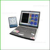 EEG-3200 Medical Equipment EEG DIGITAL Electroencephalograph 32channel EEG Machine