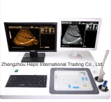 워크 스테이션을%s 가진 병원 장비 디지털 초음파 시스템