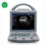 L'équipement médical portable Échographie Doppler couleur