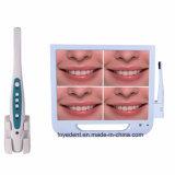 Профессиональных стоматологических перорального камера USB с 17-дюймовый монитор