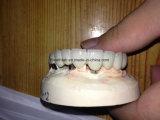 Ponticello metal-ceramico dentale