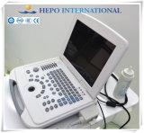 Полный цвет Doppler медицинского оборудования блока развертки ультразвука цифров портативный