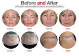 Boa pele do levantamento de face do efeito que aperta a máquina focalizada de Liposonix Hifu do ultra-som da intensidade elevada