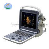 L'équipement médical portable Ulrasound Machine Doppler couleur 3D