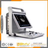 Bcu20元の製造業者によってカスタマイズされる人間の携帯用ラップトップの超音波機械