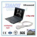 scanner d'ultrason d'ordinateur portatif de 10inch 2kg avec le logiciel humain et animal