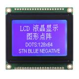 Módulo do LCD do caráter com o luminoso verde do diodo emissor de luz