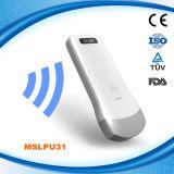 病院Mslpu31のための熱い販売の無線超音波の凸の線形プローブ
