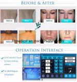 Choisissent le matériel de salon de beauté de soins de la peau d'épilation de chargement initial Shr