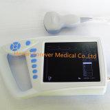 Equipamento médico totalmente digital, scanner de ultra-sons Palm (YJ-U100)