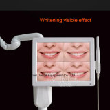 Zahnmedizinische Zähne, die Bleiche-Beschleuniger-Maschine mit oraler Kamera weiß werden