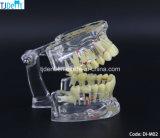 Зубоврачебная модель зубов изучения преподавательства анатомирования обработки Othodontic (DI-M02)