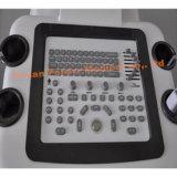 2018熱い医療機器のデジタル超音波の診断スキャンナー(YJ-U80T)