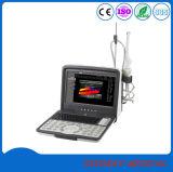L'équipement médical portable 4D foetale Échographie Doppler couleur