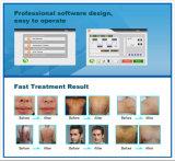 Выбирает машина терапией оптимальной пигментацией удаления волос Shr технологии ИМПа ульс васкулярная
