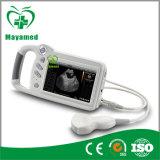 Explorador del ultrasonido de My-A015e (pantalla táctil de 7 pulgadas)