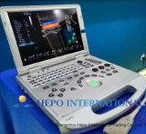 4D de l'hôpital produit médical échographie portable