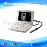 Escáner de ultrasonido digital portátil más barato