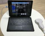 USBのプローブのラップトップのタブレットは携帯用超音波装置を基づかせていた