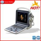 Excelente desempenho 3D/4D ultra-sonografia Doppler em Cores Yj-U60plus