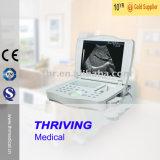 Scanner portatif médical d'ultrason de Thr-Lt002 Digitals