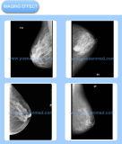Ysx980bの高周波40kHz乳房撮影のレントゲン撮影機