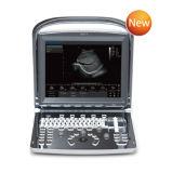 Portable bianco di Doppler del nero ultrasonico dello scanner di ultrasuono (SC-ECO1)