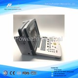 Ce Hospital Equipamiento Médico Portátil 4D Color Doppler Ultrasonido Scanner