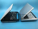 Scanner portatile medico Sun-800d di ultrasuono di Digitahi 3D