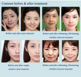 Buccia professionale del getto dell'ossigeno dell'acqua della strumentazione di cura di pelle per l'imbiancatura della pelle