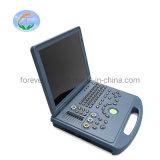 Le diagnostic de l'équipement Digital Doppler couleur 3D/4D scanner à ultrasons