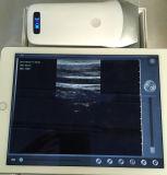 Sonde sans fil d'ultrason pour l'obstétrique de secours de clinique