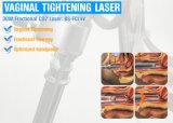 Équine de la chirurgie au laser L'ablation de la verge et les lésions cervicales
