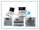 完全なデジタルBモデル携帯用Gynecologyの超音波(YJ-U500)