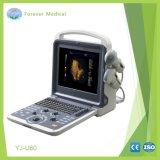 Scanner pieno di ultrasuono di Doppler di colore di Digitahi dell'apparecchio medico (YJ-U60)