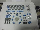 Ultraschall-Scanner der Fabrik-Preis-voller Digital-Laufkatze-B
