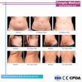 La réduction des graisses rapide corps Cryolipolysis Slimming Machine de beauté