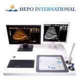Scanner d'ultrason du chariot B/W Digitals avec le poste de travail