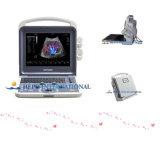 L'équipement hospitalier portable 3D/4D d'échographie du scanner