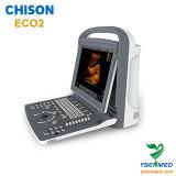 2D B/W Ultraschall Chison Eco2 des medizinischen LEDportable-