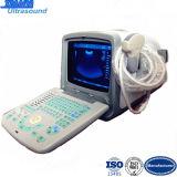 Portable complet Scanner ultrasons numérique